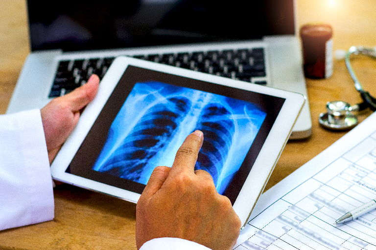 doctor showing lungs on digital tablet